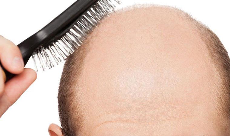 Jakie są wskazania do zabiegu przeszczepu włosów