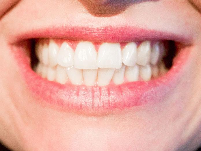 Higiena jamy ustnej, czyli najprostsze sposoby zapobiegania zapaleniu dziąseł