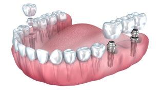 Jakie zalety mają implanty zębów